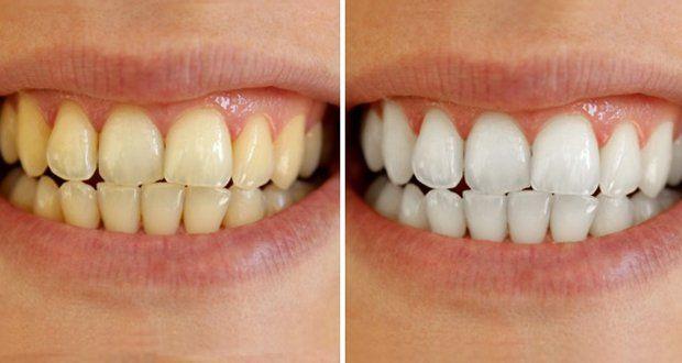 Connu Les 25 meilleures idées de la catégorie Se blanchir les dents sur  HG33
