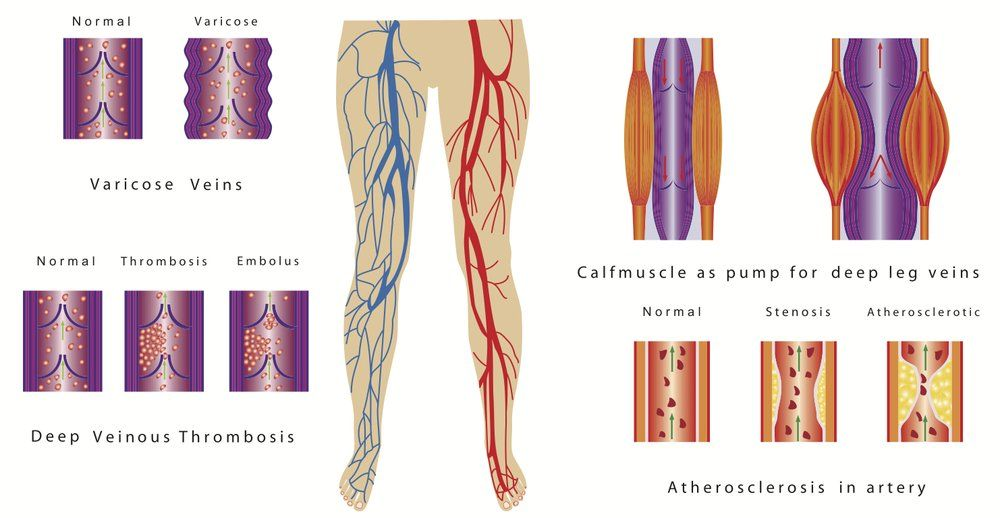 Pin on Lower Extremity Wounds