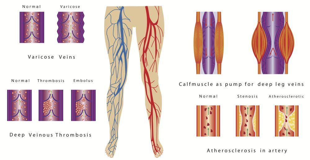 Arterial Insufficiency