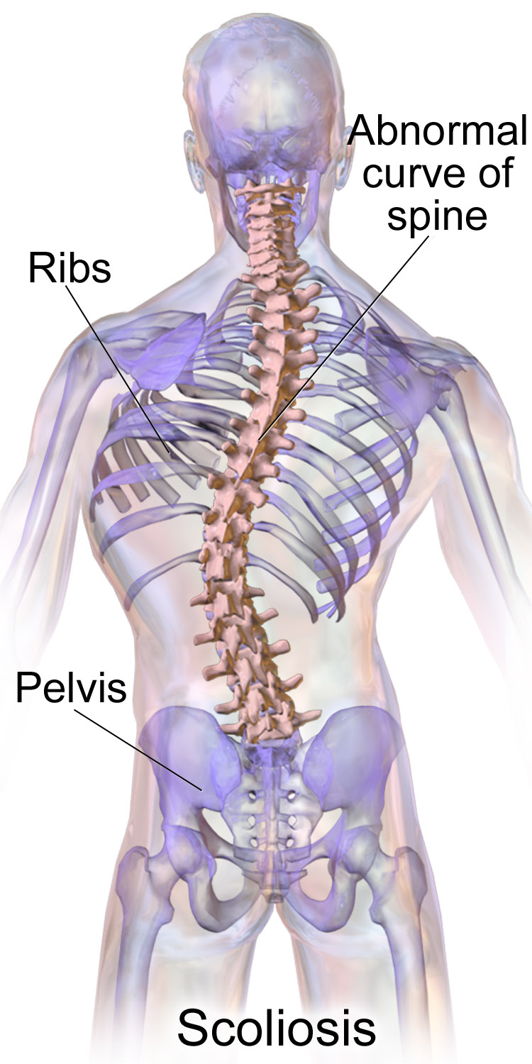 Pain Left Side Under Ribs | Health and Nutrition | Pinterest ...