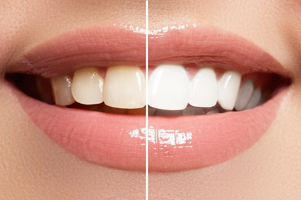 Comment ne plus avoir les dents jaunes - Blanchir les ...