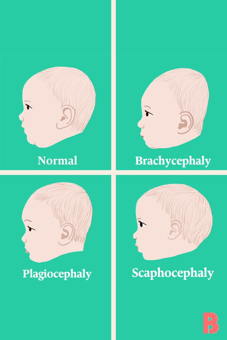 How To Prevent Plagiocephaly Aka Flat Head Syndrome