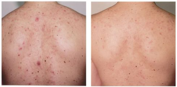 Best ways to get rid of acne scars on your back how to get rid best ways to get rid of acne scars on your back how to get rid ccuart Image collections