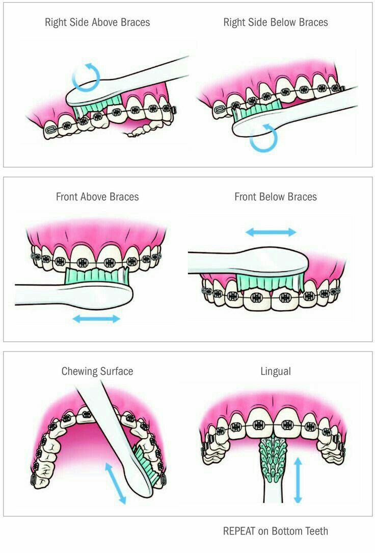 Idea by carol haberkam on Health Getting braces, Dental