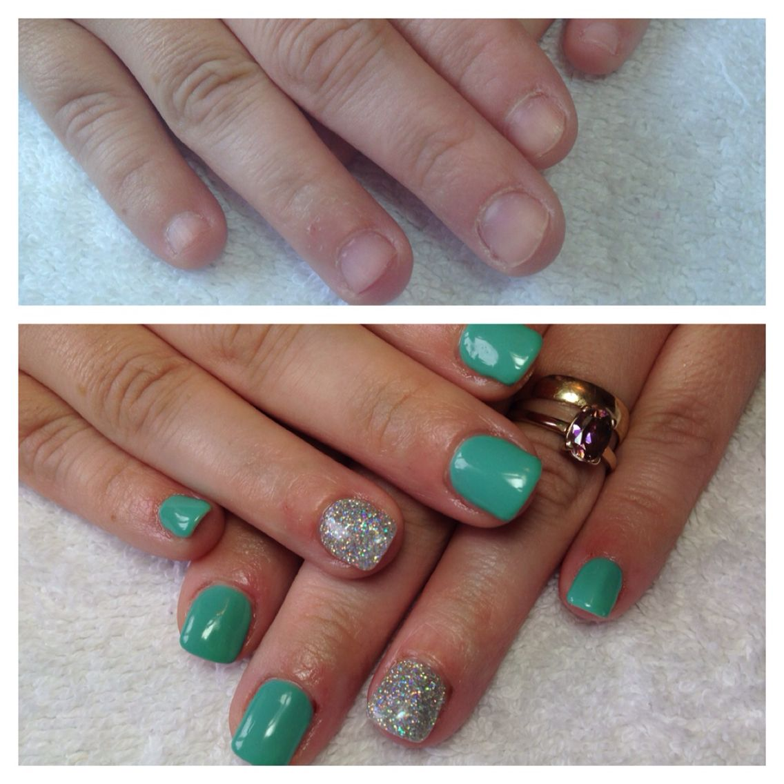 Cal Gel Nail: Nail Extensions With Calgel, Before And After