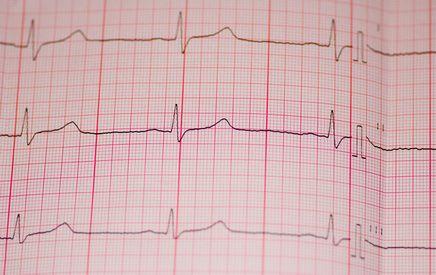 Causes of Abnormal EKG Results | Health | Chronic illness