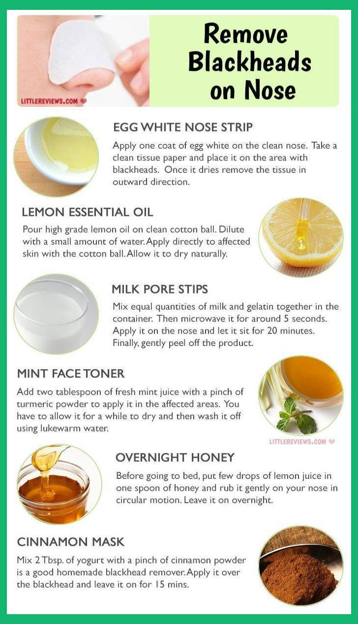Blackhead Remover – Best Natural Ways to Remove Acne For Good
