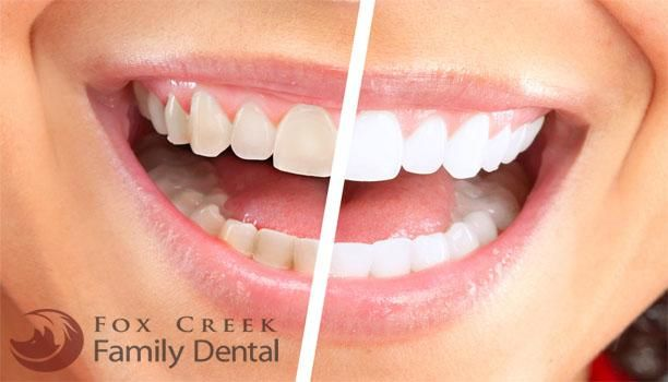 Schedule your #teethwhitening consultation today at #FoxCreekFamilyDental