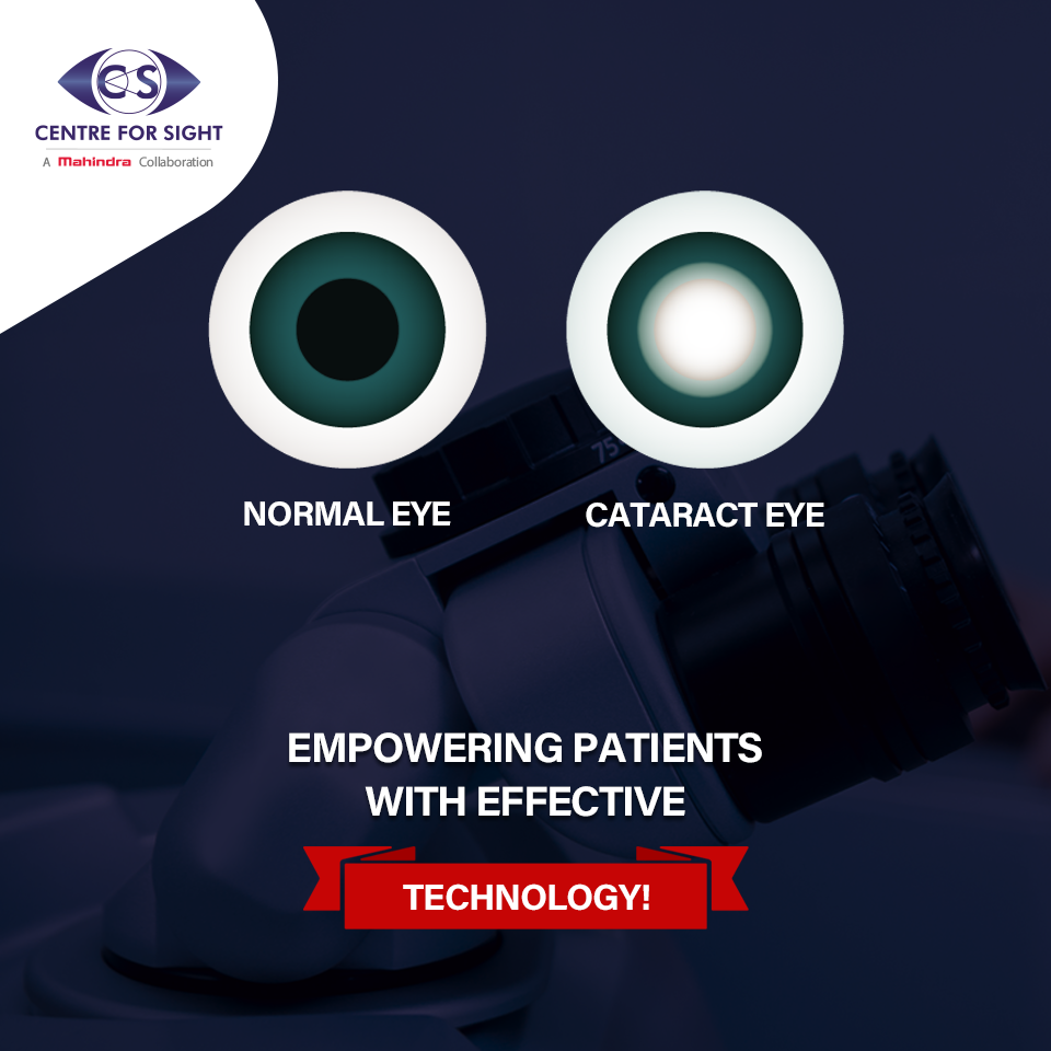 Pin by Centre For Sight on Act Against Cataract Eye