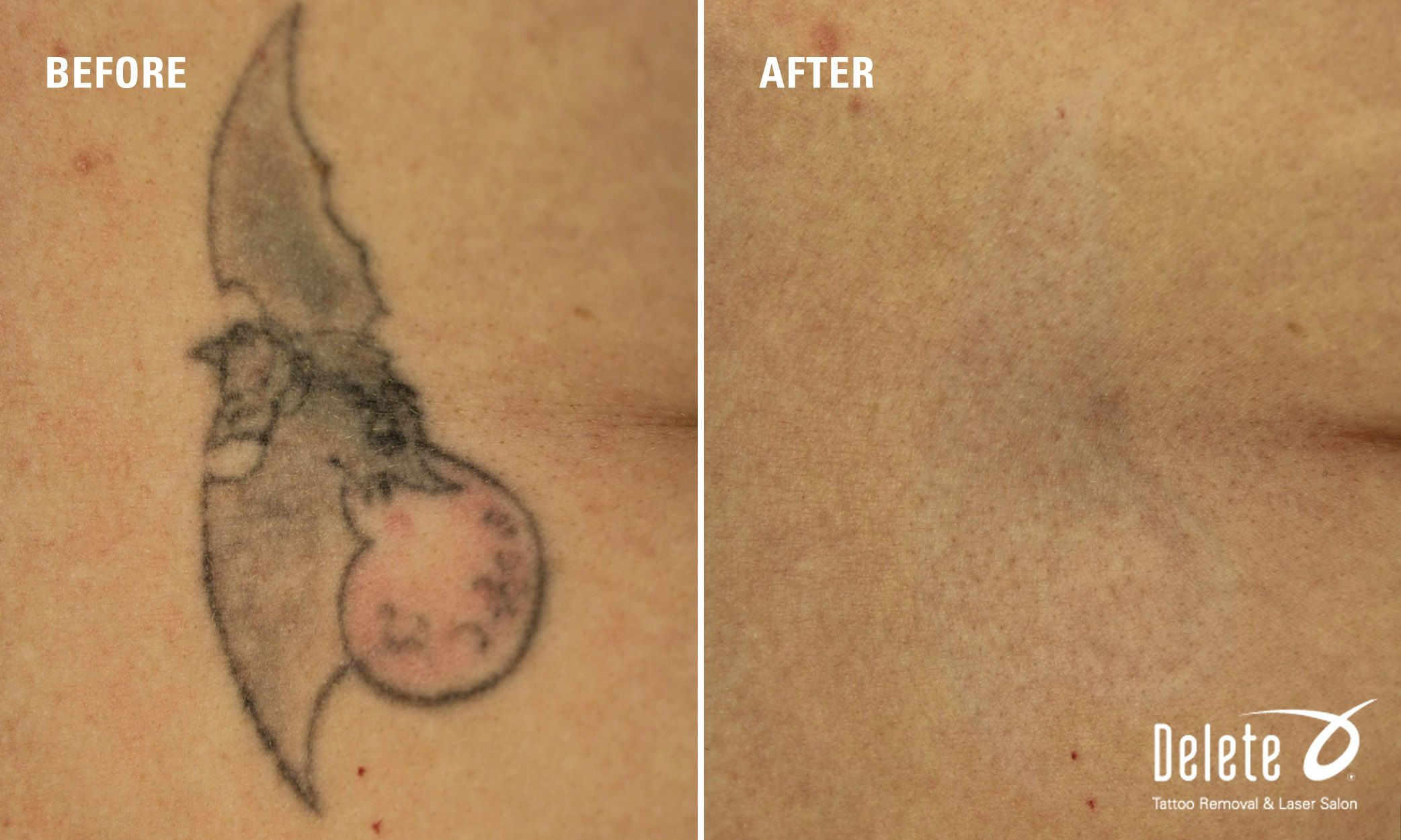 Tattoo Removal Before And After Photos Tattoo Removal Results Tattoo Removal Results Laser Tattoo Removal Tattoos