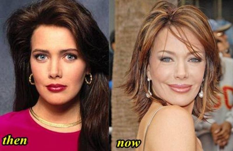 Jennifer Garner Plastic Surgery Before and After Lips ...