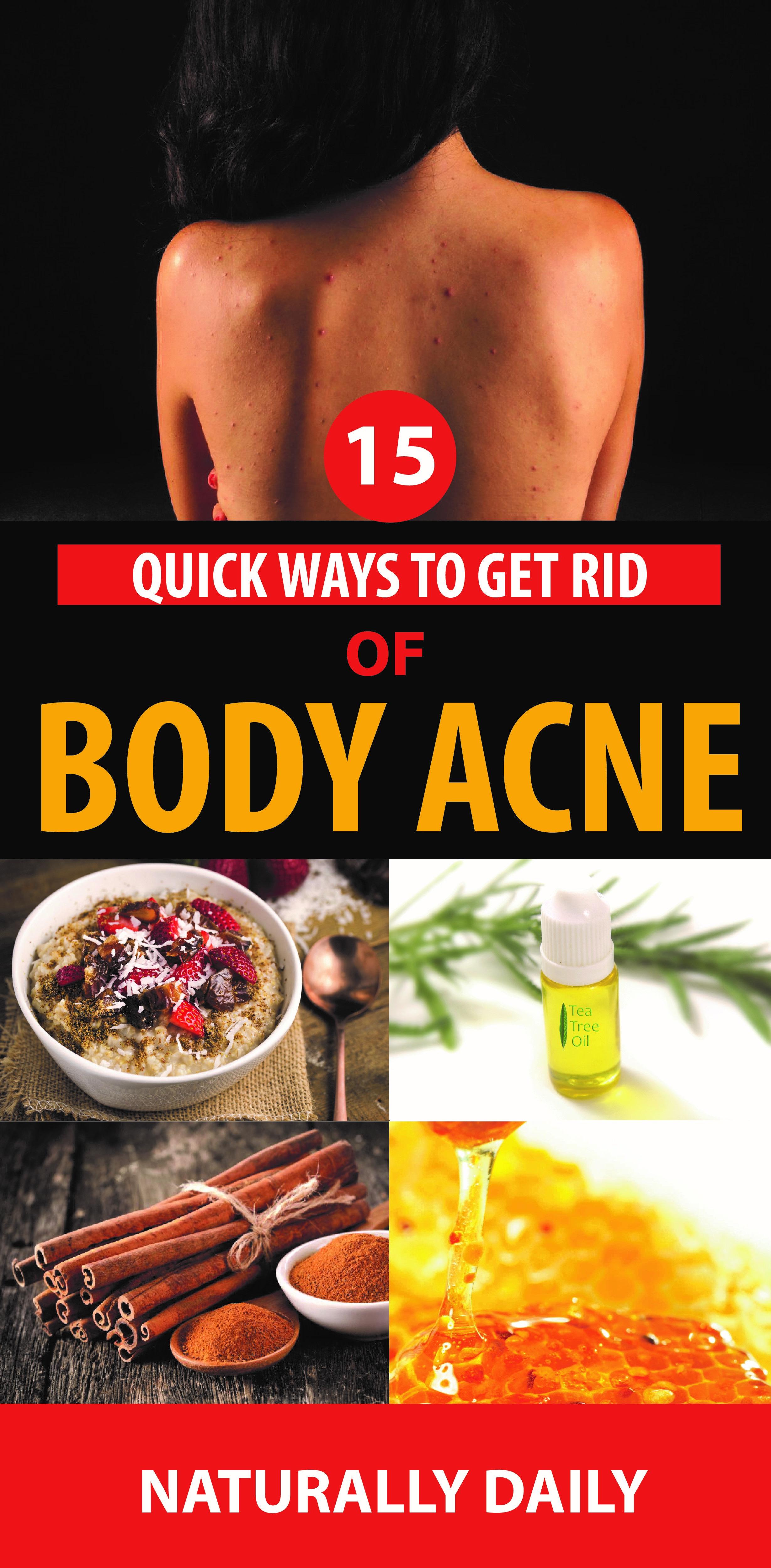 15 quick ways to get rid of body acne body acne skin