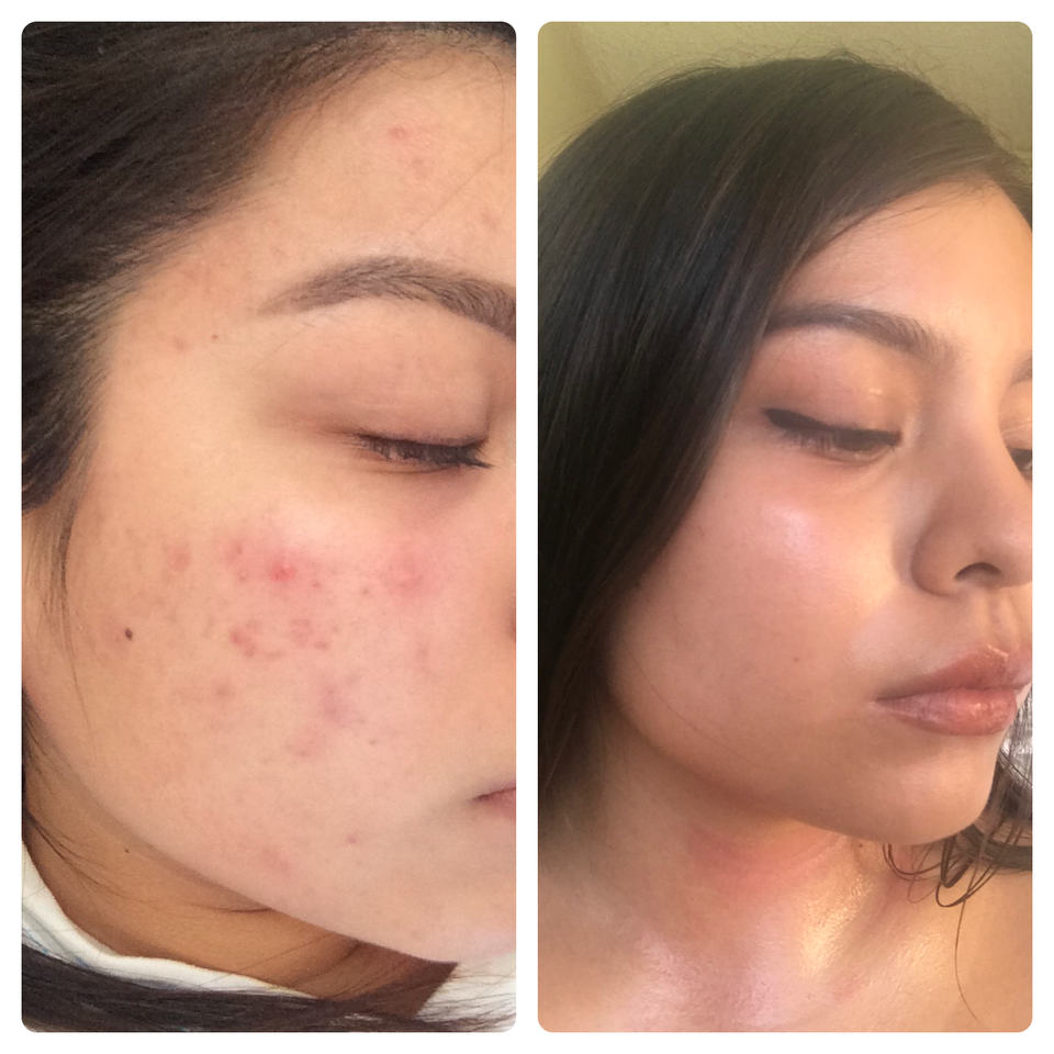 [B&A] ¡Doxycline and Epiduo! Full Routine in the Comments