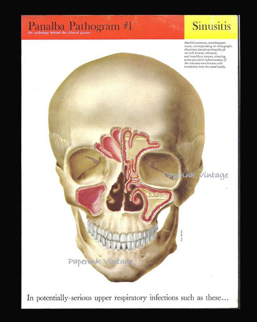 Medical Diagrams Of Skull And Sinus - Block And Schematic Diagrams •