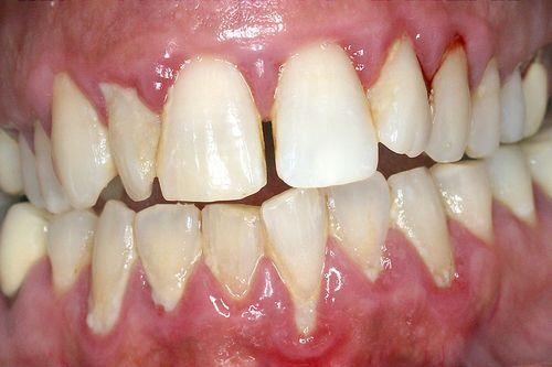 parodontite remede grand mere