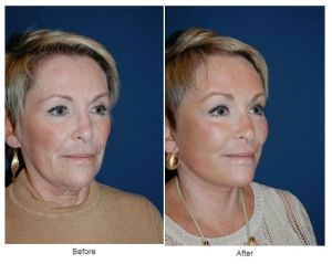 Facial plastic surgery procedures