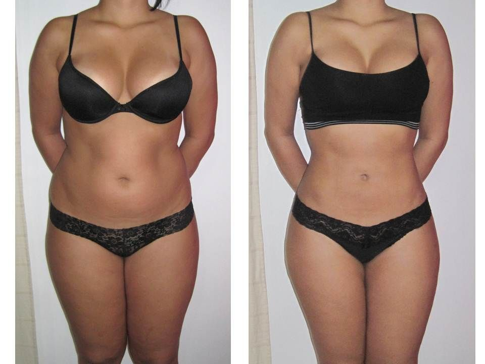 Before And After I Lipo Session 8 Sessions Skin Tightening Procedures Liposuction Laser Lipo