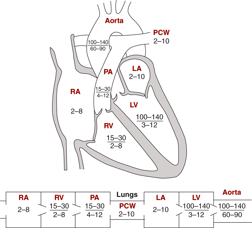 Image: Diagrams indicating normal pressures in the cardiac
