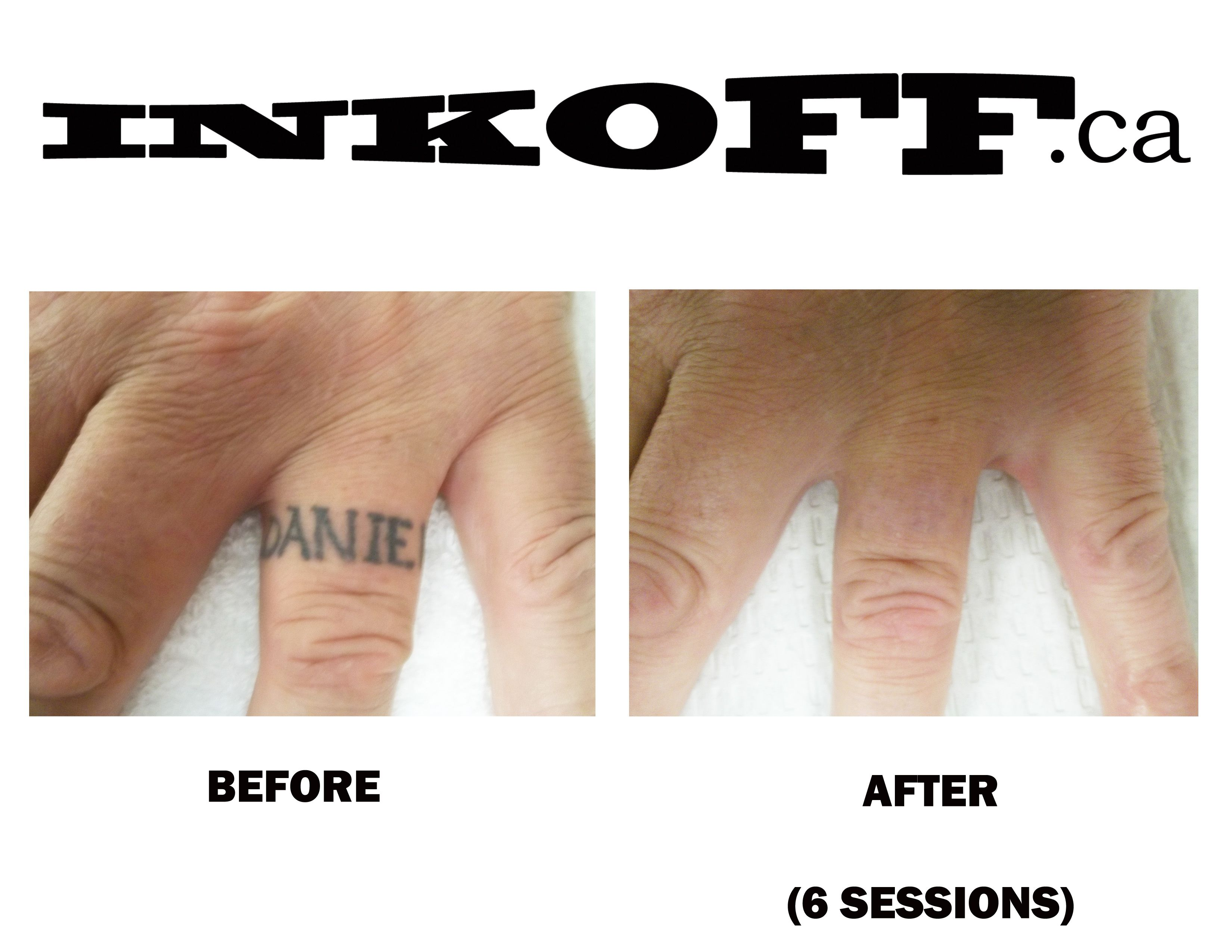 Black Finger Tattoo Removal Before After 6 Sessions Laser Tattoo Tattoo Removal Laser Tattoo Removal