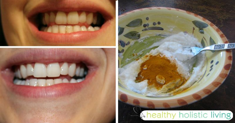 At Healthy Holistic Living we search the web for great health content to share with you. This article is shared with permission from our friends at FitLife.tv. By Drew Canole There are few things more attractive than a nice set of pearly whites and a warm smile!Regardless of the shape...More