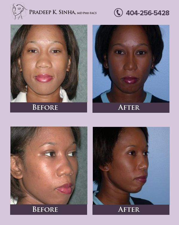 Dr Sinha S Artistic Goal For Restoring Your Youthful And Refreshed Look Is To Help Define And Enhance The Under Nose Reshaping Rhinoplasty Rhinoplasty Surgery