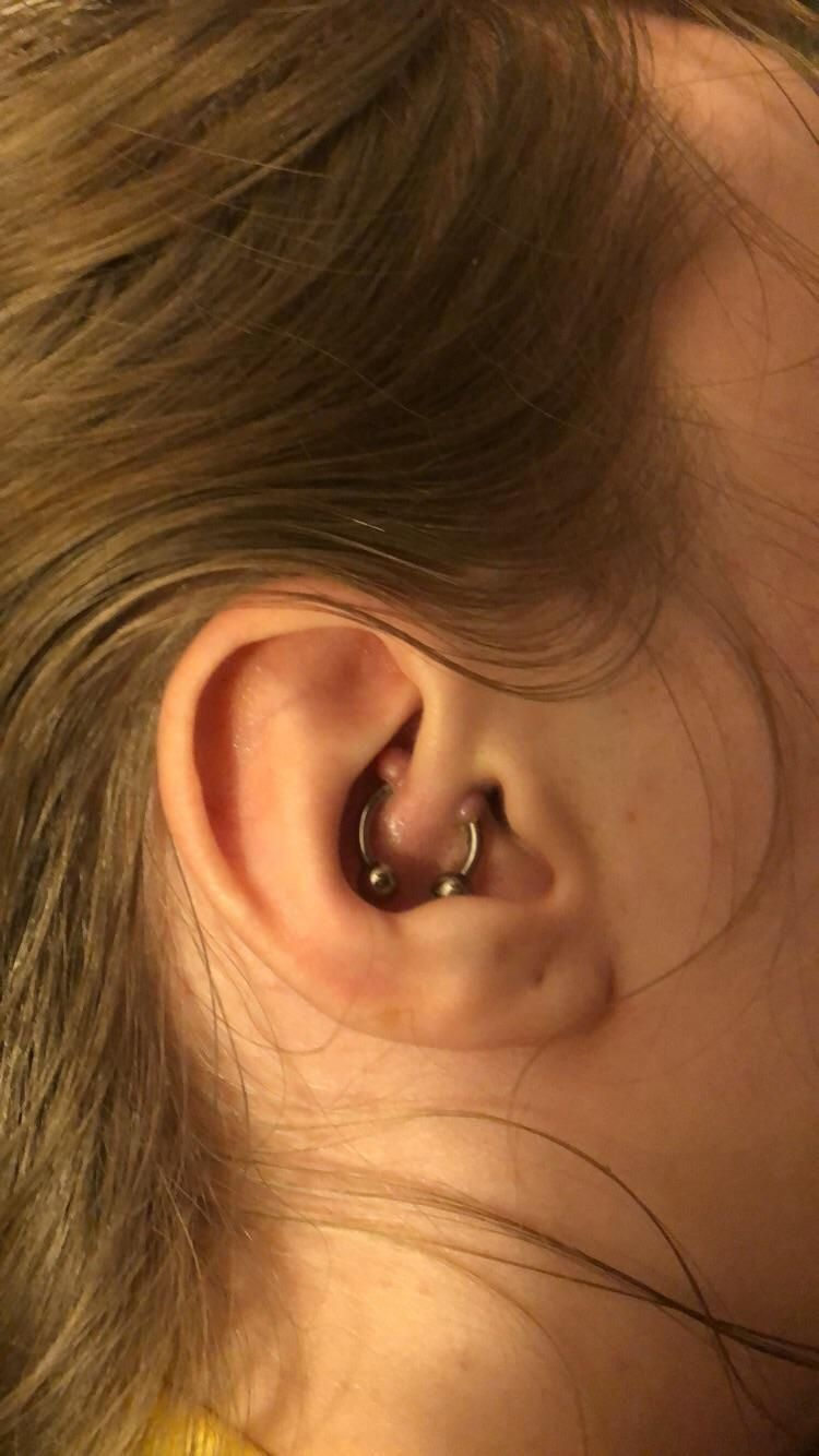 Anyone Have Any Experience With Keloids Forming From Cartilage