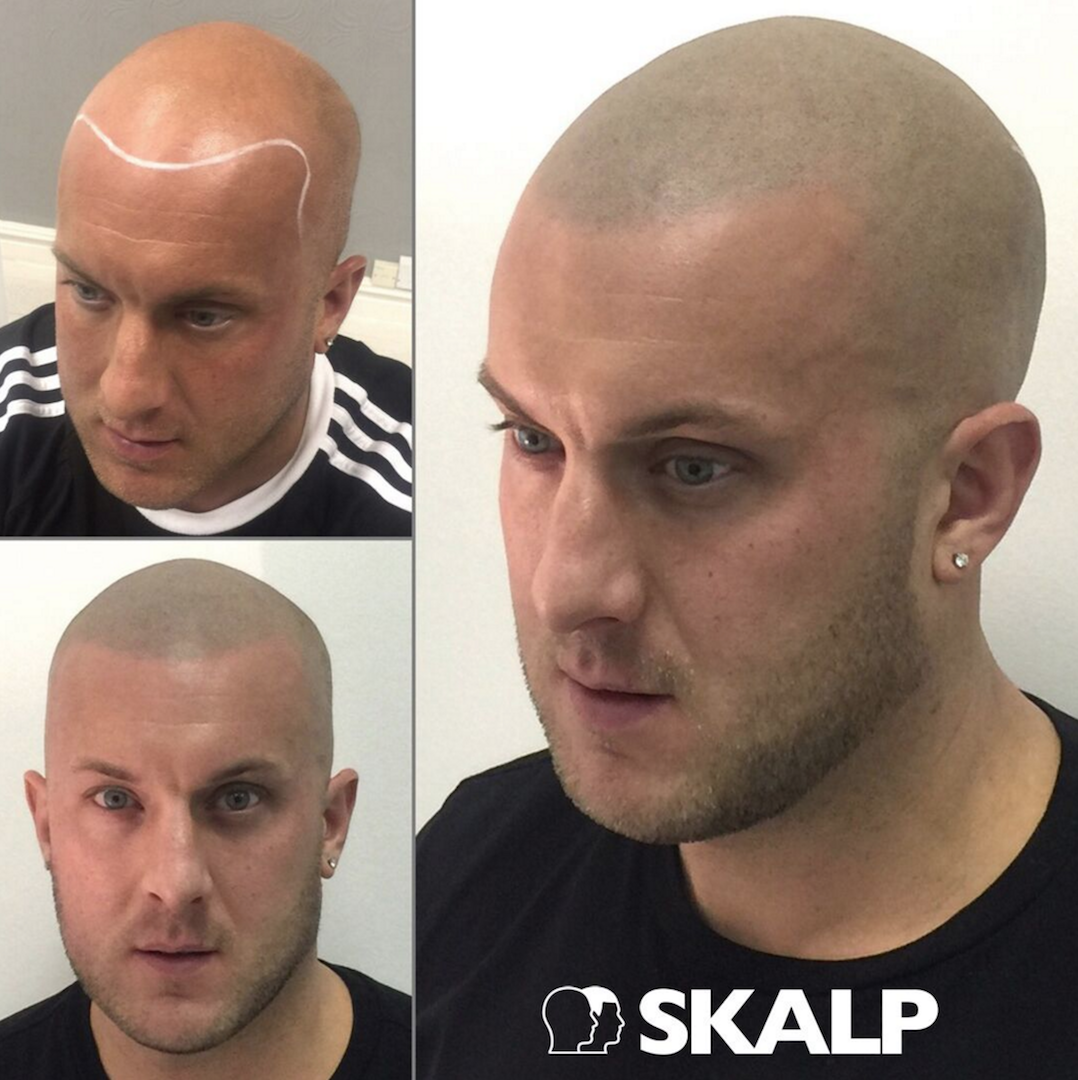 Hairloss Bald Style Smp