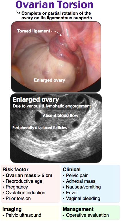 Ovarian Torsion Rosh Review Medical Ultrasound Diagnostic Medical Sonography Obstetric Ultrasound