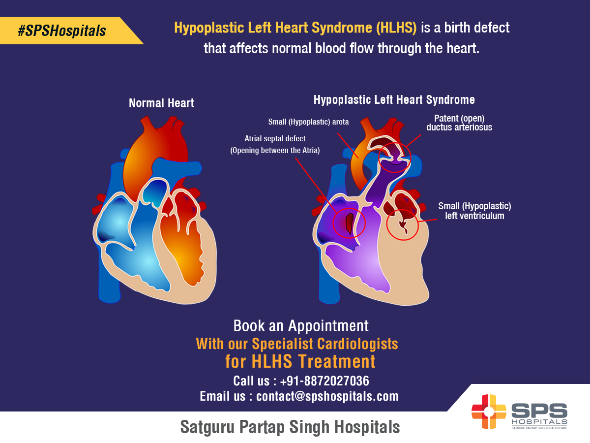 Hypoplastic Left Heart Syndrome Hlhs Is A Birth Defect That