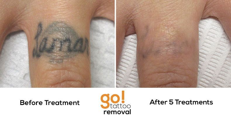 After 5 laser tattoo removal treatments this tattoo is 90