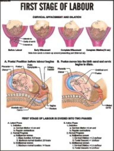 Stages of Labor and Delivery   First Stage of labour   Maternity ...