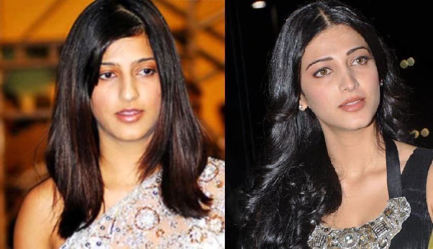 Top Best Plastic Surgeries Of Bollywood - eBloggerTimes | Plastic ...