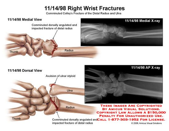 comminuted colleys fracture of distal radius and ulna