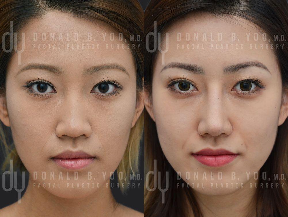 Asian cheek surgery