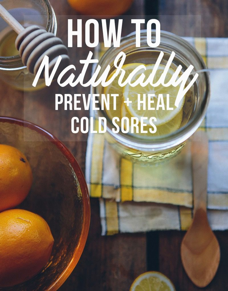 How To Prevent And Treat Cold Sores Naturally What Foods Avoid Which Supplements Take Natural Oils Work For Healing