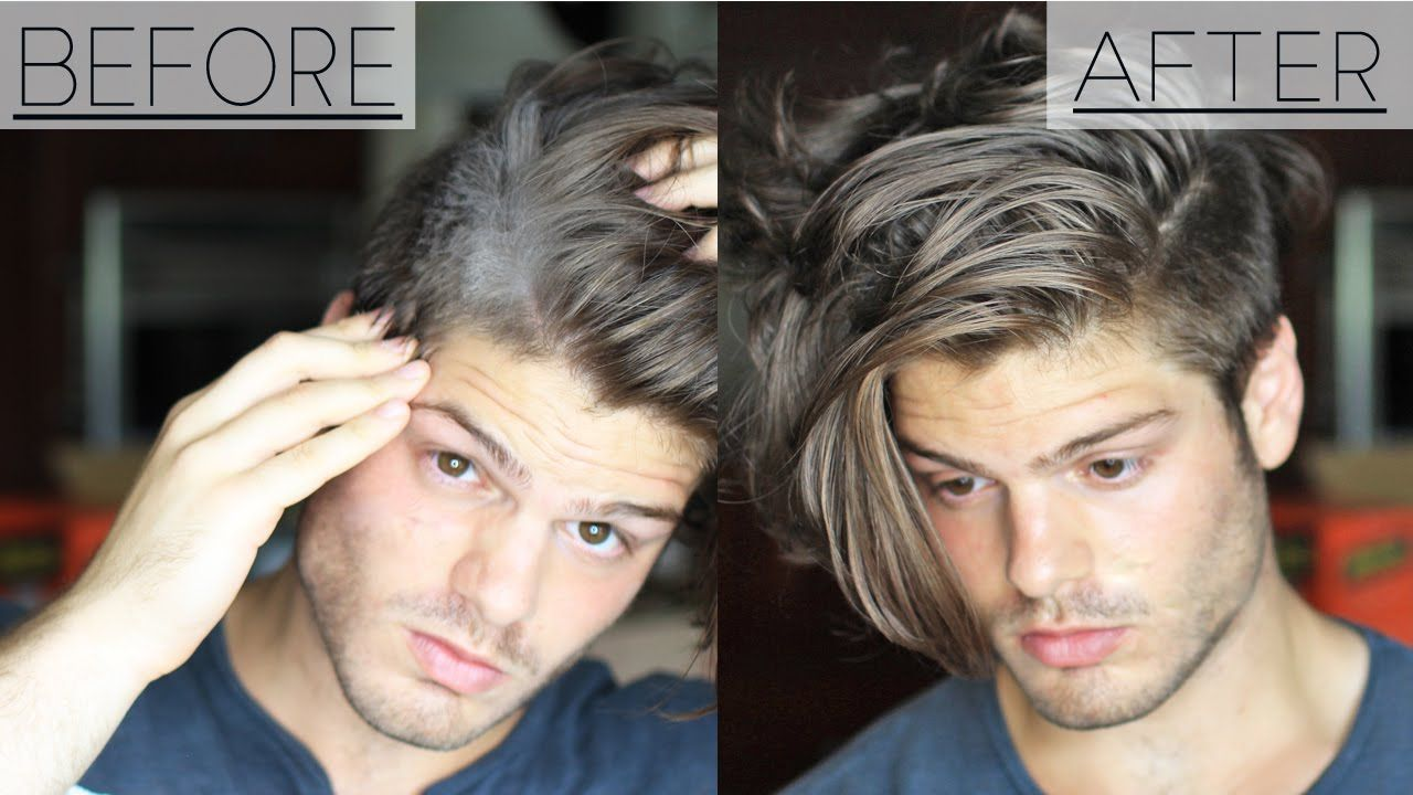How to get rid of dandruff 3 home remedies mens hair