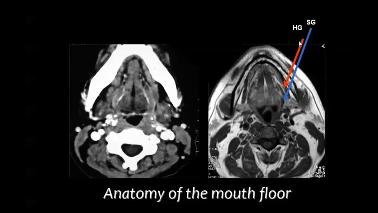 Pin By Dr Abuaiad On Brain Head And Neck Darth Head And Neck Darth Vader