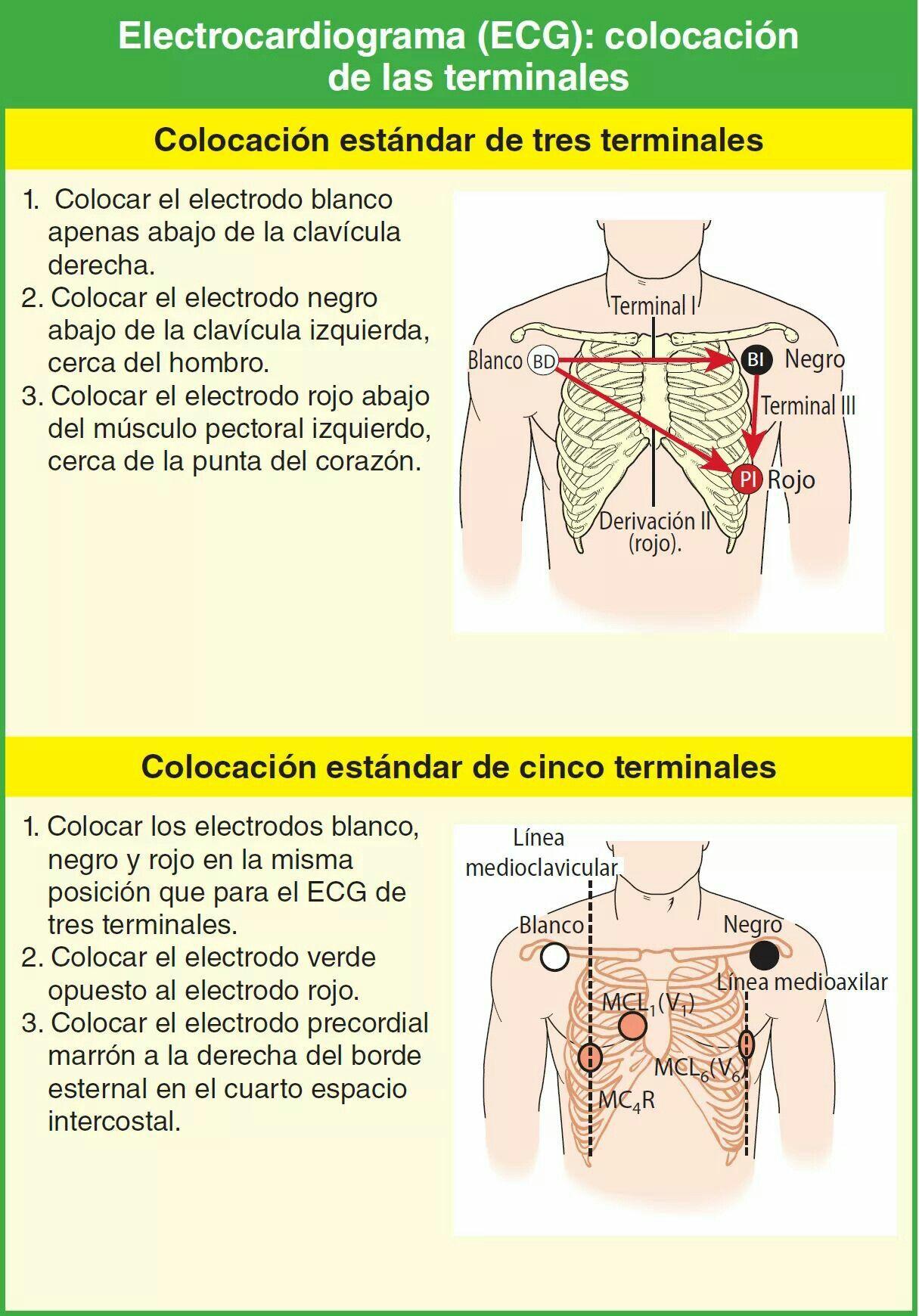 Pin De Naza Vargas En Ekg Electrocardiograma Electrodo Enfermeria