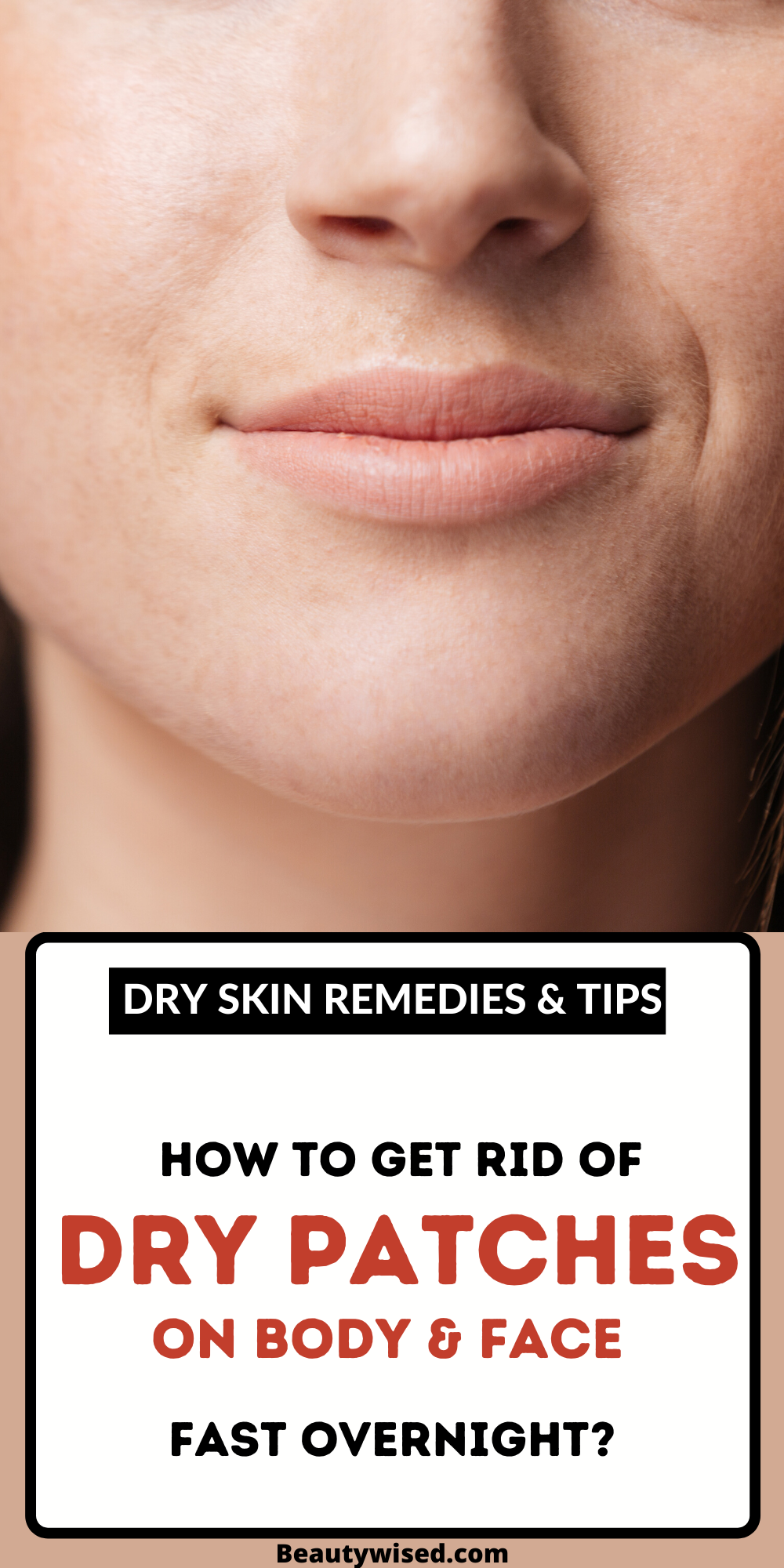 How To Get Rid Of Dry Patchy Skin On Face