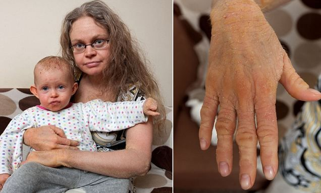 Lizard skin condition melanie bradley 35 and her two year old lizard skin condition melanie bradley 35 and her two year old daughter rebecca from buttercup close atherstone greater manchester suffer from the rare publicscrutiny Choice Image