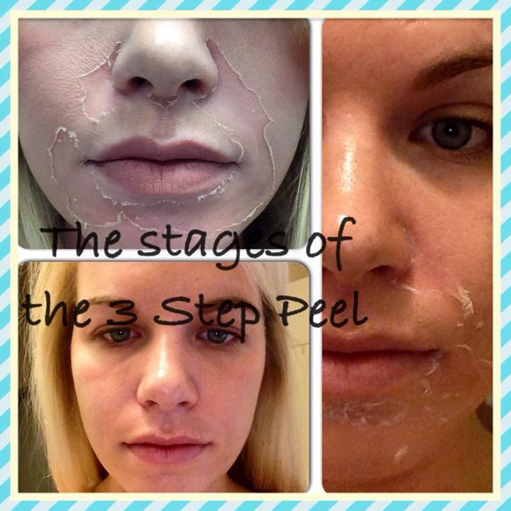 Collections Chemical Peel Chemical Peel Results Skin Health