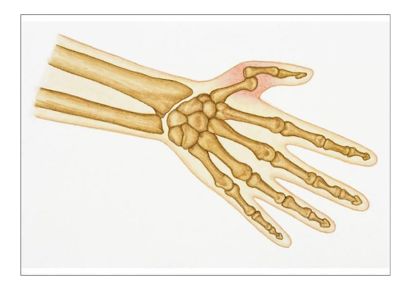 13+ A1 Poster. Illustration of bones in human hand and dislocated