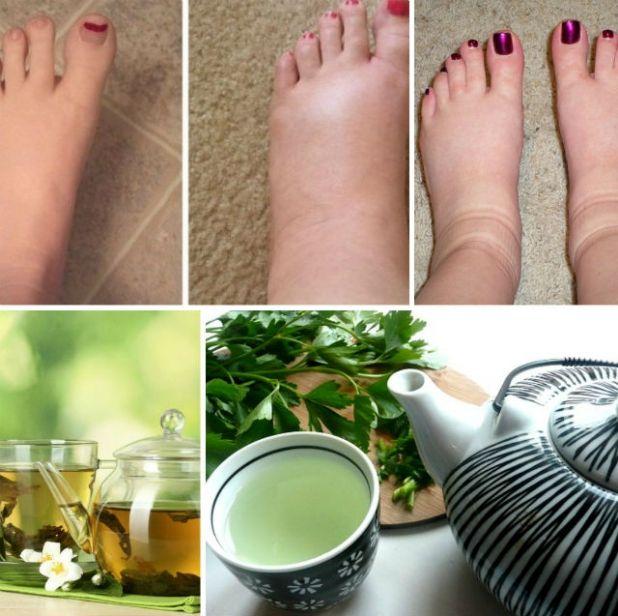remedii naturiste picioare umflate)