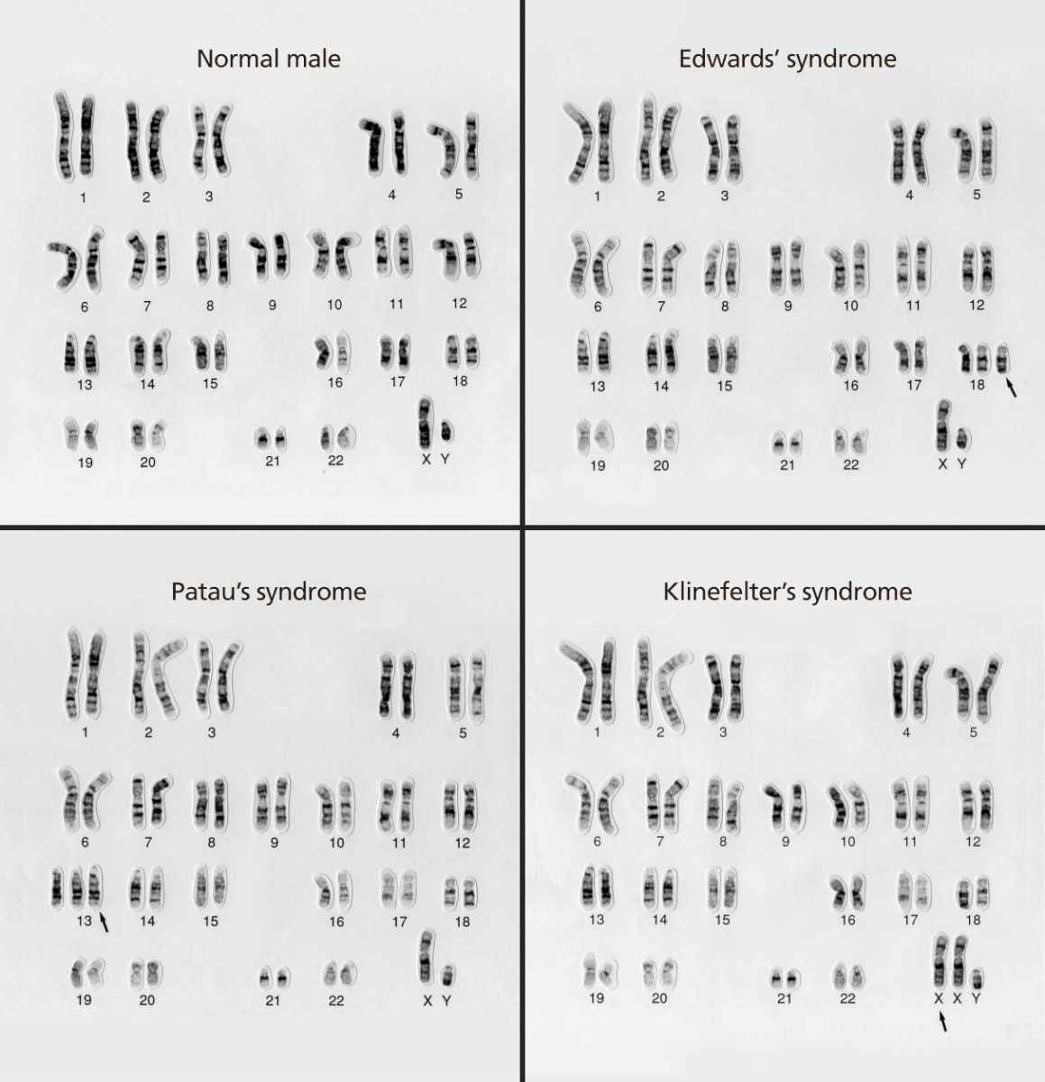 a karyotype is the number and appearance of an organism 39 s chromosomes these karyotypes compare. Black Bedroom Furniture Sets. Home Design Ideas