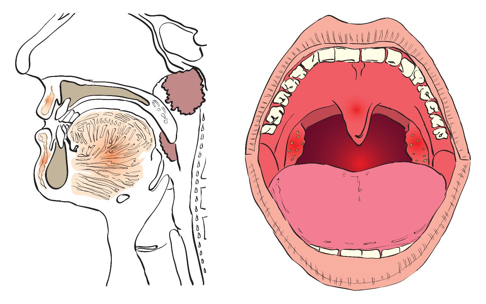 Cuándo quitar amígdalas y/o adenoides - http://plenilunia.com ...