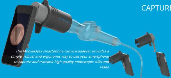 MobileOptx developed a medical device innovation to connect an iPhone with an endoscope.