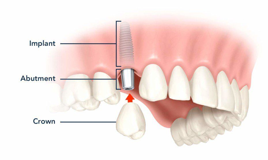 Guide To Dental Implant Cost - Prices of Implants and All-on-4 ...