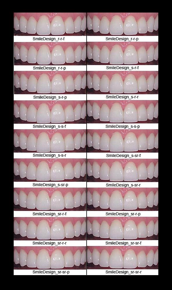 porcelain-veneers-shape-color-bl1-bl2-bl3-empress-emax-loren-library.png (591×994)