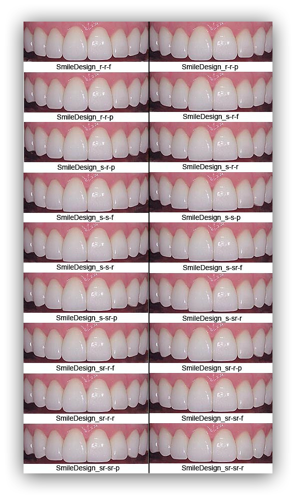 Pin By Melissa Rogers On Smile Pinterest Teeth Dental And Dentistry