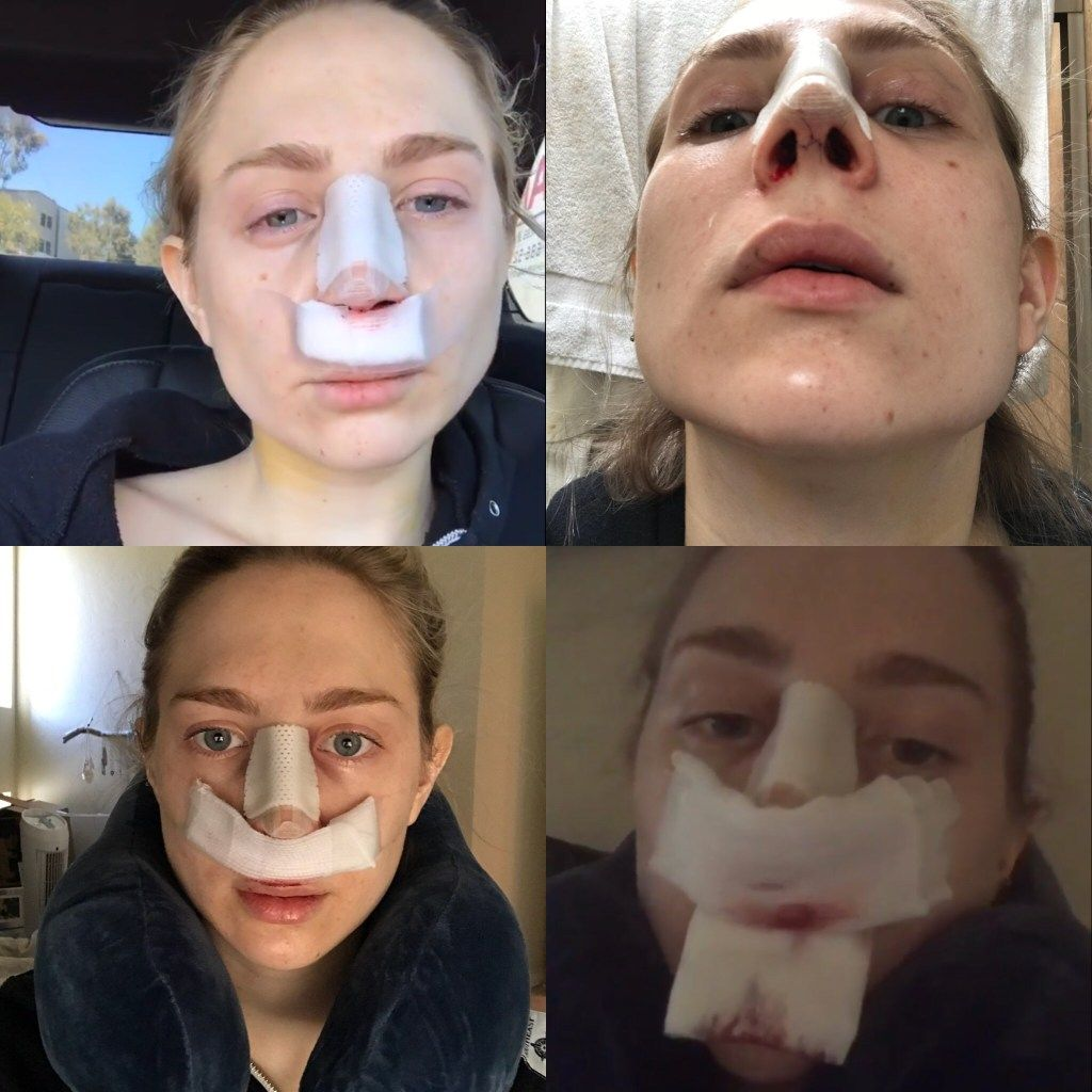 Nose Job Surgery, Recovery, Cast Removal & Two Week Post